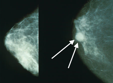 Mammography in Delhi