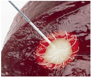 Liver cancer immunotherapy in Delhi India