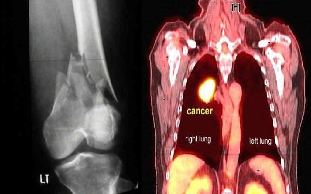 osteosarcoma specialist in delhi