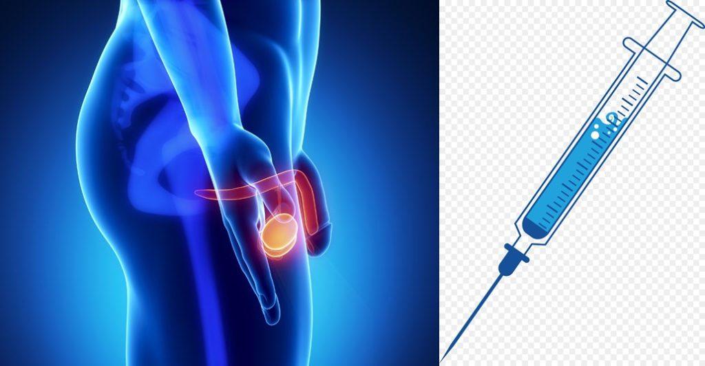 metastatic prostate cancer treatment in delhi india